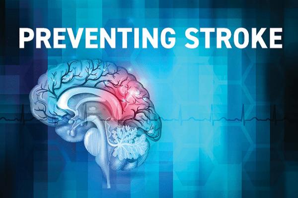 Stroke Prevention Presentation